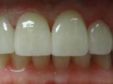 After Veneers Stanhope Family Dentistry