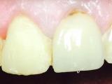 Before Veneers Stanhope Family Dentistry